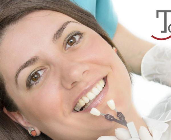 Faccette estetiche dentali | Studio Dentistico Tonietti | Dentista a Brindisi