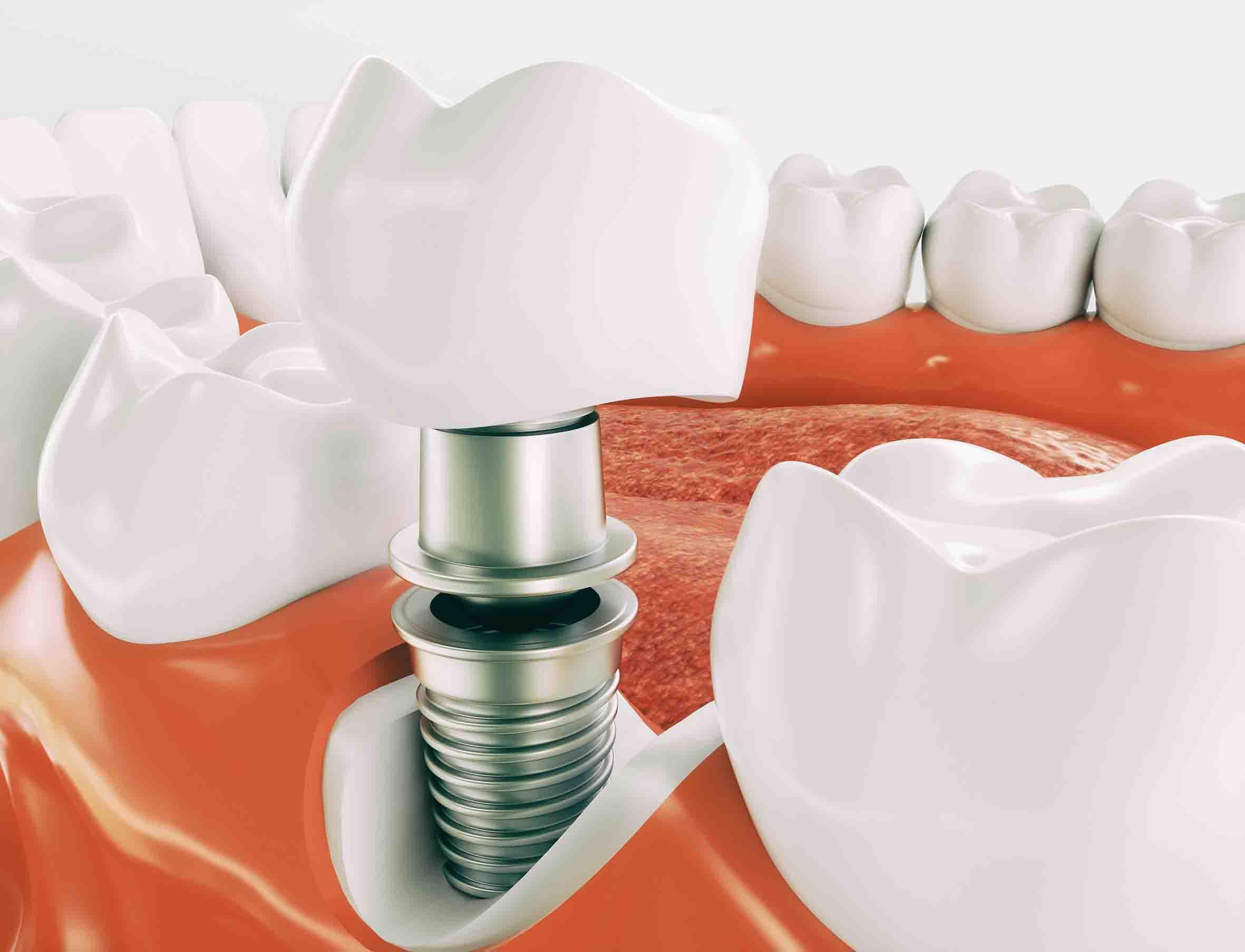 cosa fare dopo impianto dentale 2