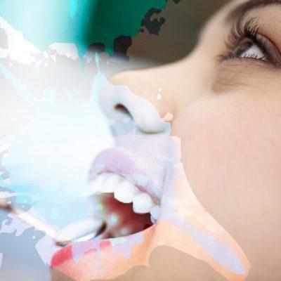 Chirurgia Orale | Studio Dentistico Tonietti | Dentista a Brindisi