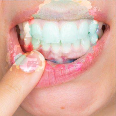 Parodontologia | Studio Dentistico Tonietti | Dentista a Brindisi